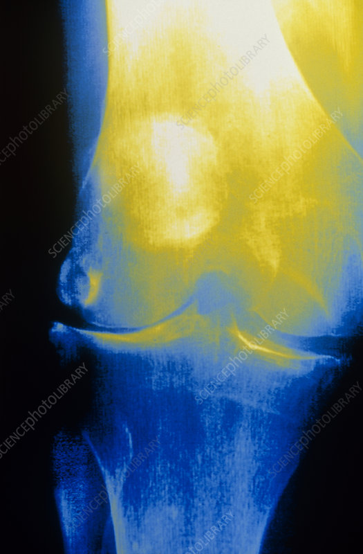 X-ray view of knee joint with osteoarthritis
