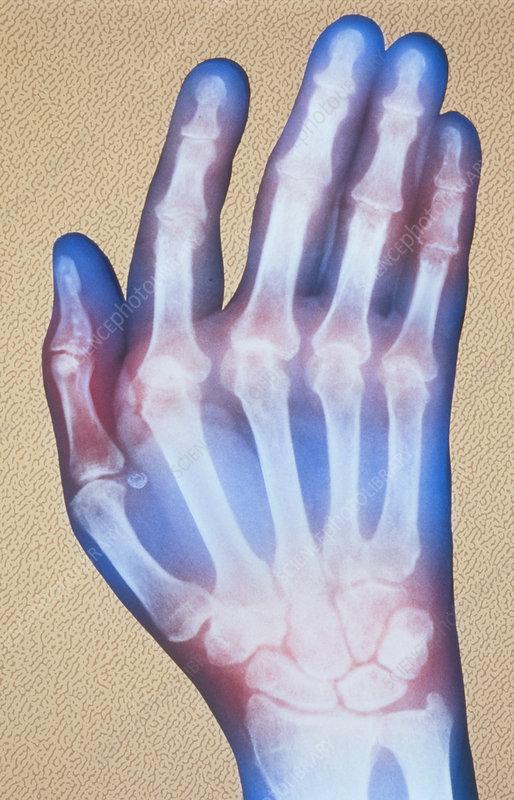 Coloured X-ray of hand with rheumatoid arthritis