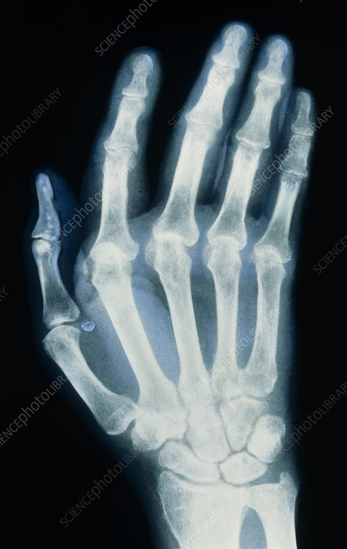 Coloured X-ray of hand with rheumatoid arthritis