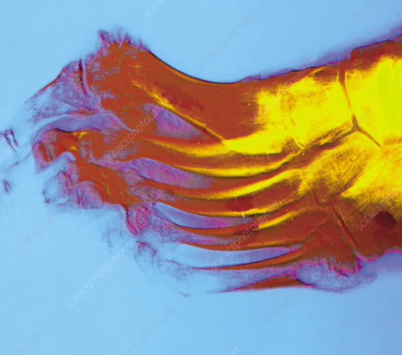 Coloured X-ray of rheumatoid arthritis of a foot