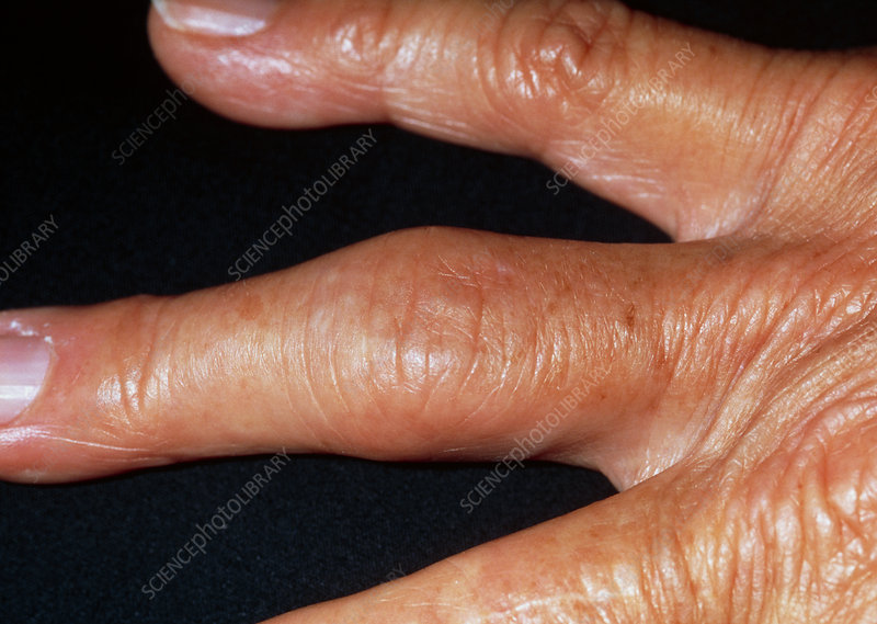 Hand showing fingers affected by osteoarthritis
