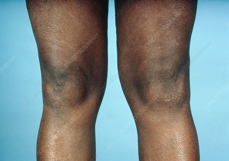 View of knees affected by osteoarthritis