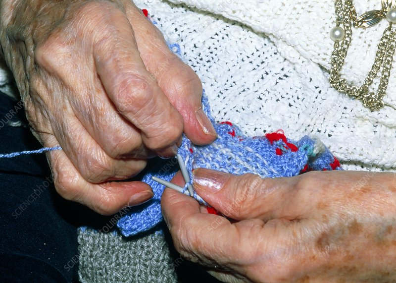 Hands knitting affected by osteoarthritis