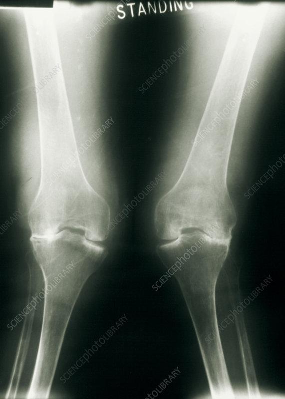 X-ray of knee joints with rheumatoid arthritis - Stock ...