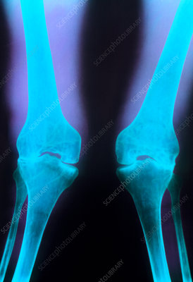 X-ray of knee joints with rheumatoid arthritis