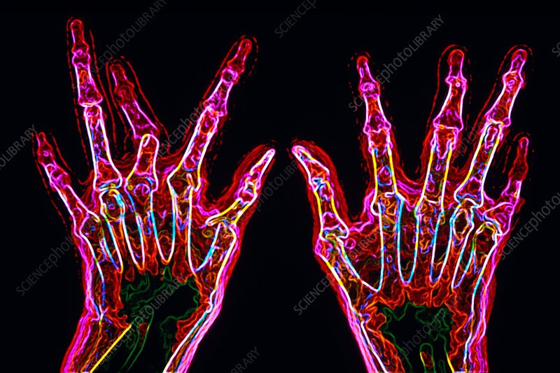 Arthritic hands, X-ray