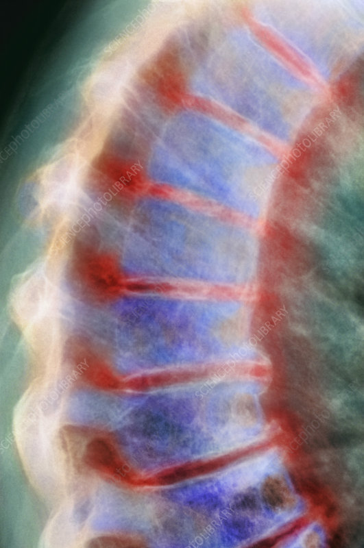 Arthritis of the spine, X-ray