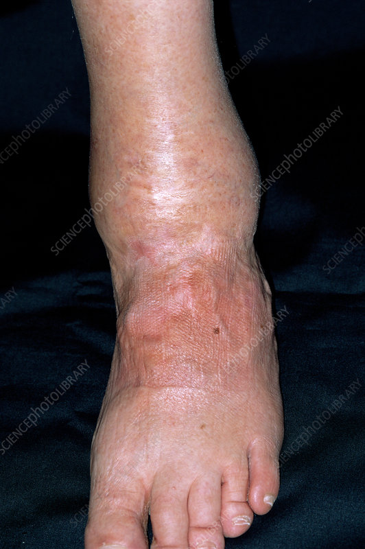 Arthritis of the ankle