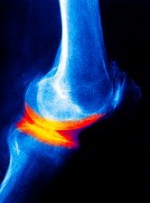 Joint disease, X-ray