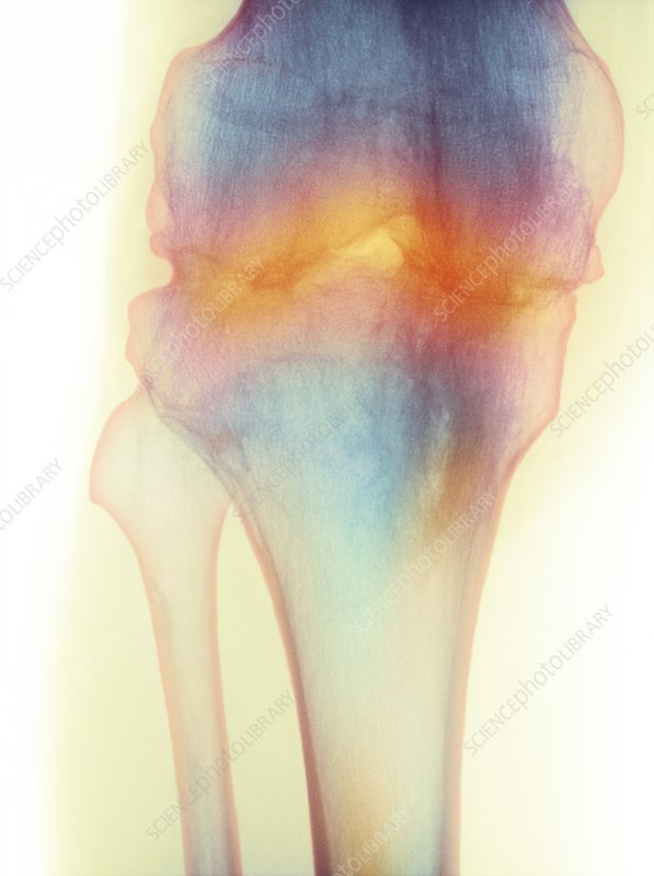 Fused knee joint, X-ray