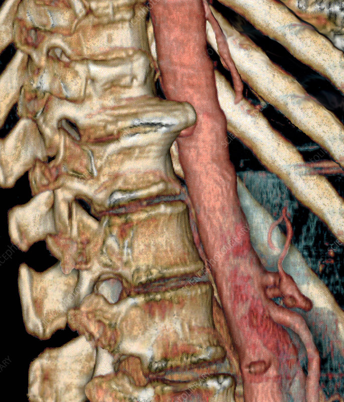 Joint disease of spine, CT scan
