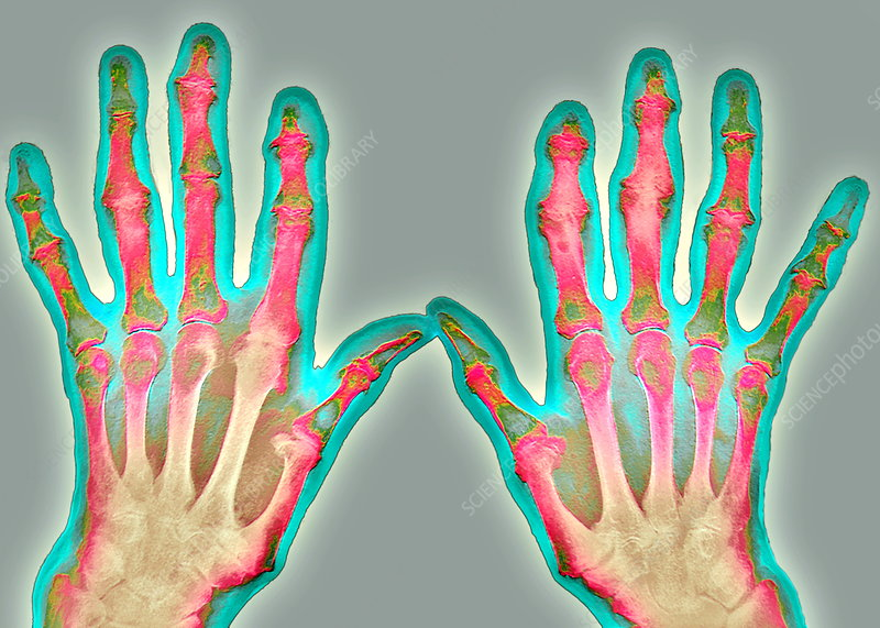 Arthrosis of the hand, X-ray