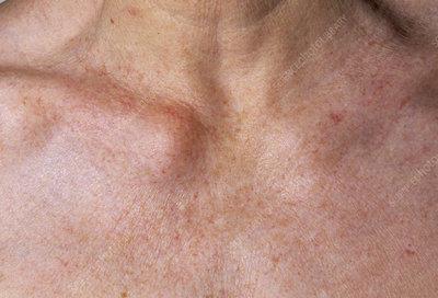 Lump On Collar Bone Arthritis