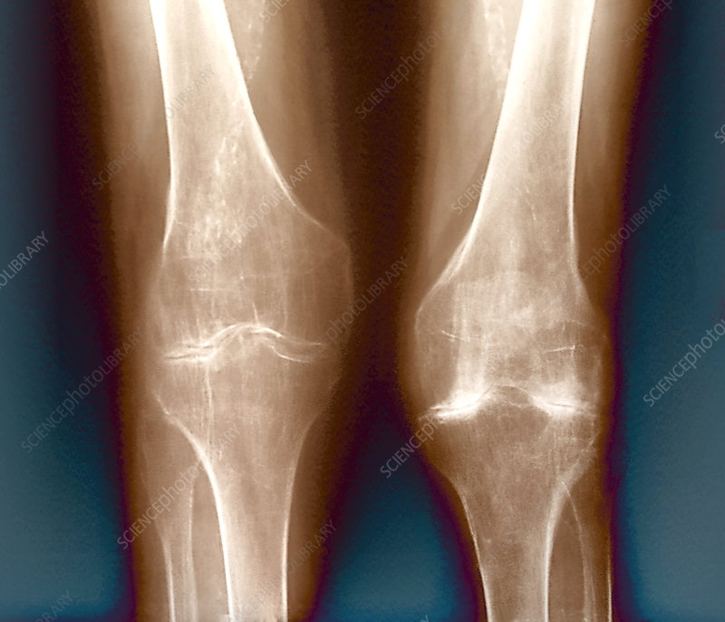 Arthritic knees, X-ray