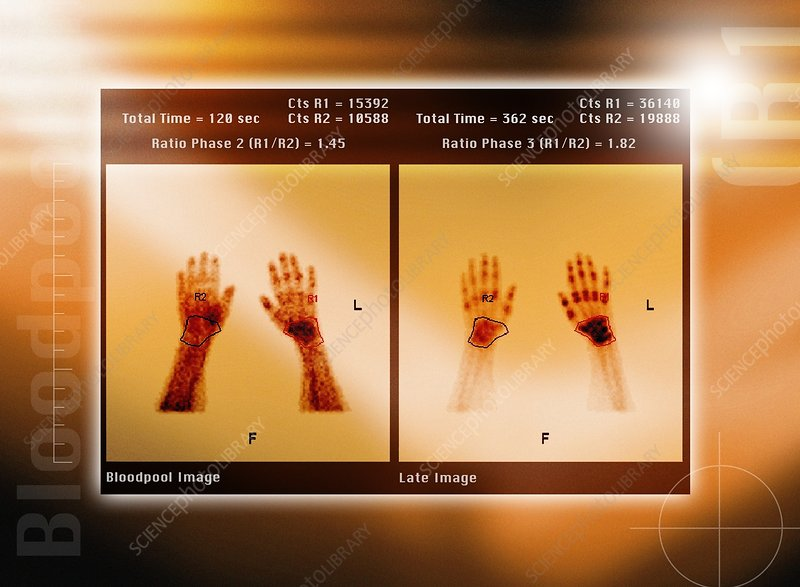 Arthritic hands, scintigram