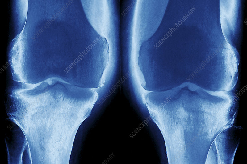 Arthrosis of the knees, X-ray