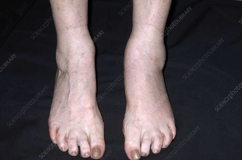 Arthritic ankle