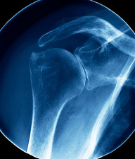 Arthritic shoulder, X-ray