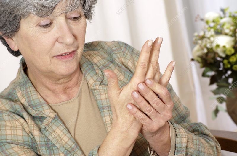 Woman with osteoarthritis