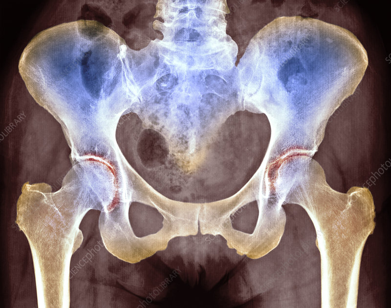 Osteoarthritis Of Hip Joints X Ray Stock Image M1100665