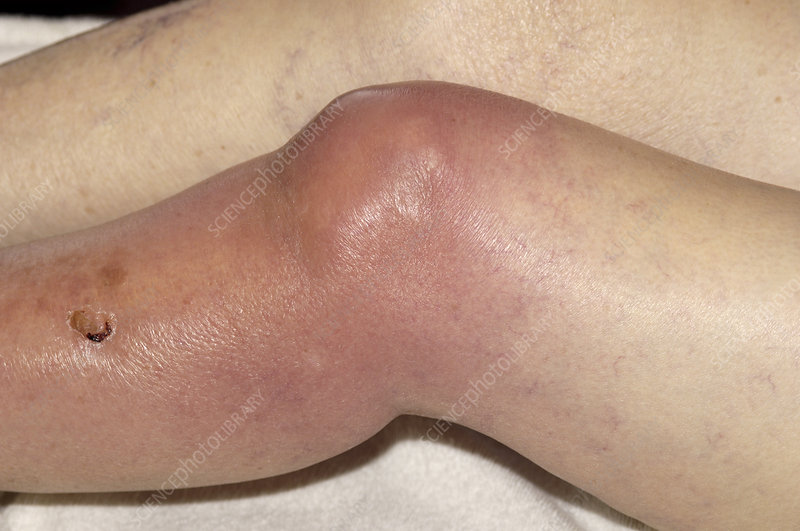 Septic arthritis of the knee