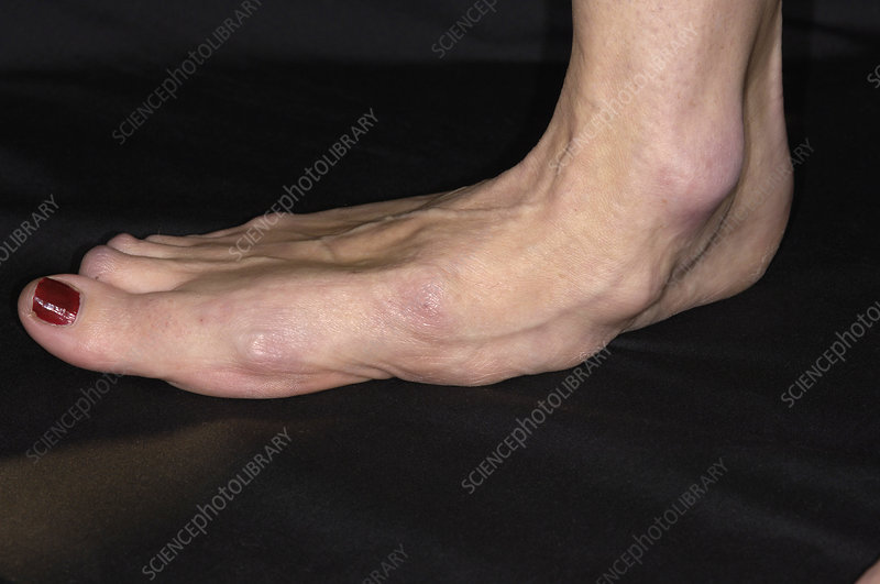 Arthritic foot