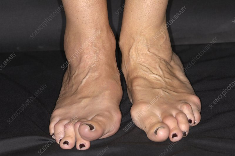 Arthritic feet