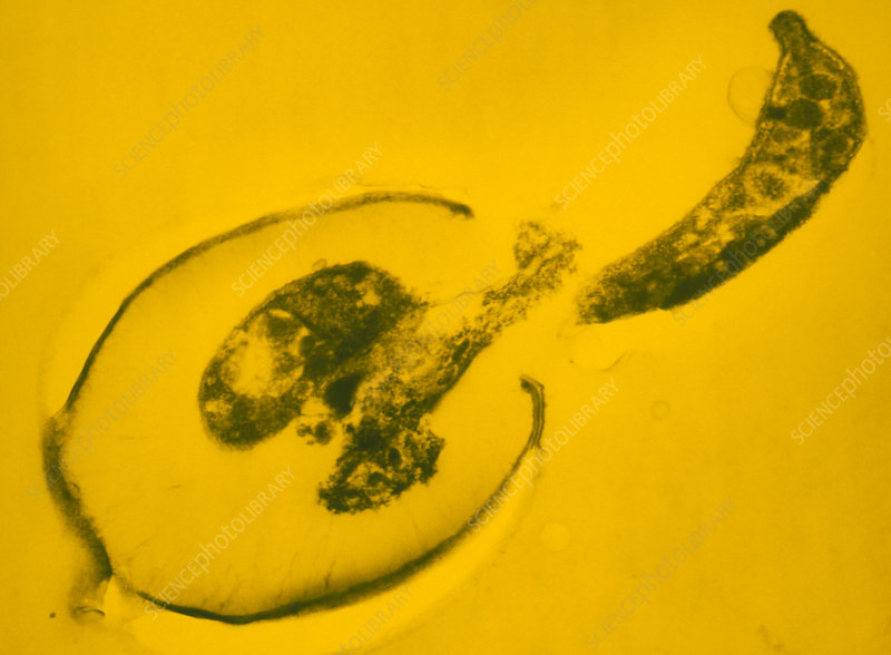 False-col TEM of Cryptosporidia sp