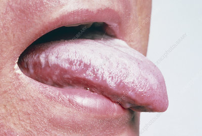 Tongue of an AIDS patient showing oral candidiasis