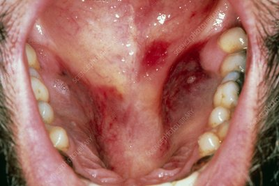 Kaposi's sarcoma in the mouth of an AIDS patient