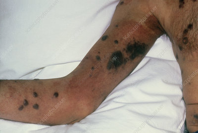 Kaposi's sarcoma on the arm and chest, in AIDS