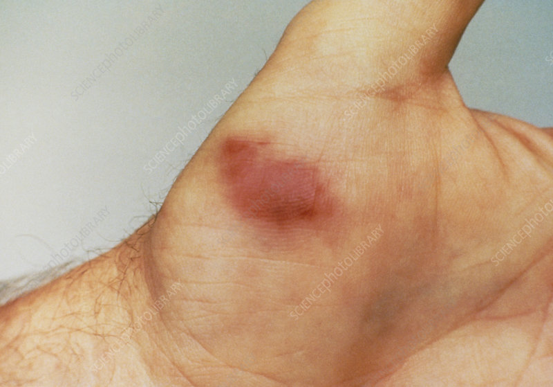 Kaposi's sarcoma on the hand of an AIDS patient