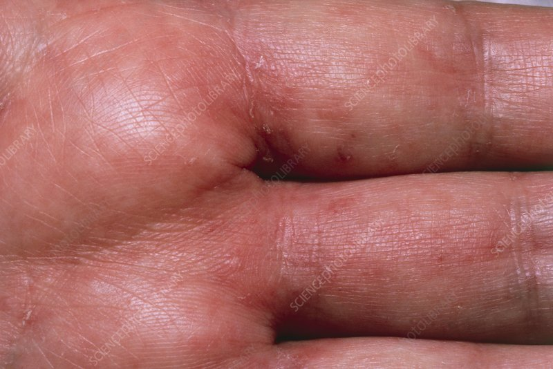 Scabies rash on hand of AIDS patient
