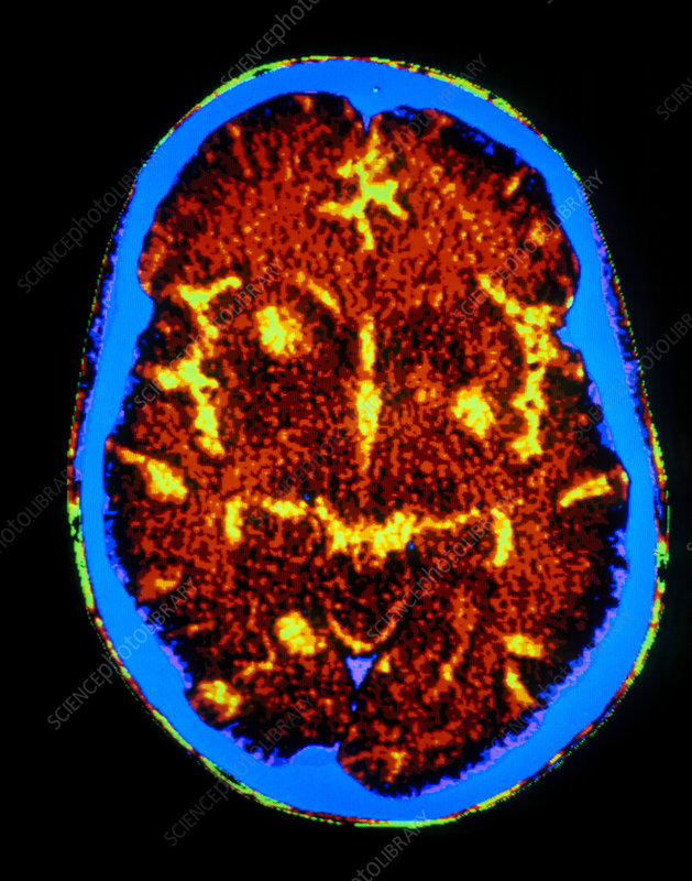 F/col CT scan of brain with toxoplasmosis in AIDS