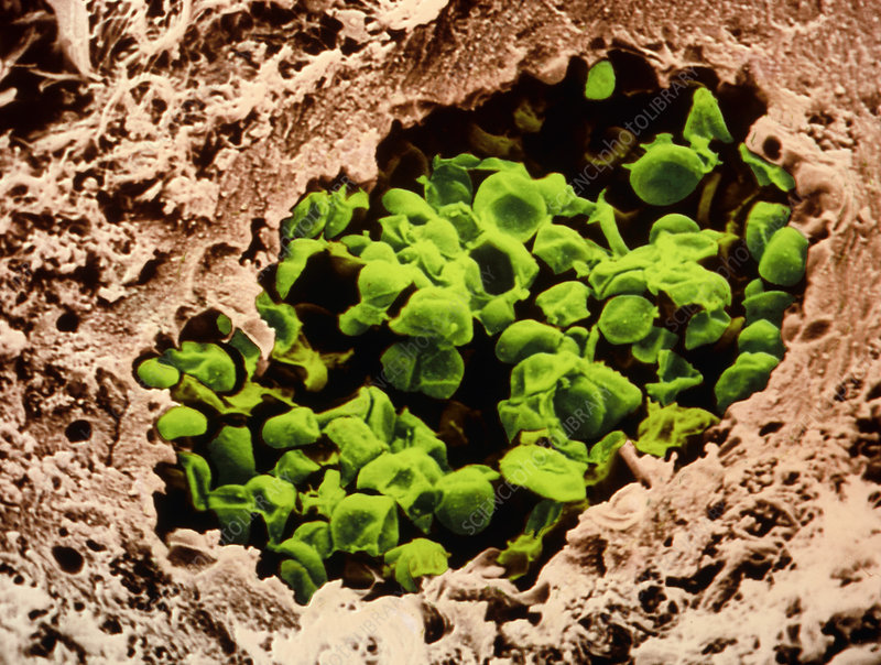 Coloured SEM of Pneumocystis carinii in AIDS lung - Stock