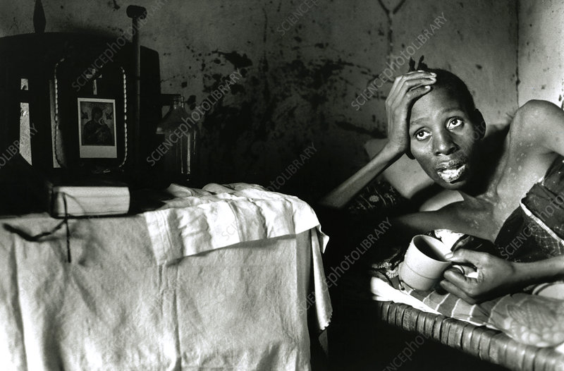 AIDS patient at home, Tanzania
