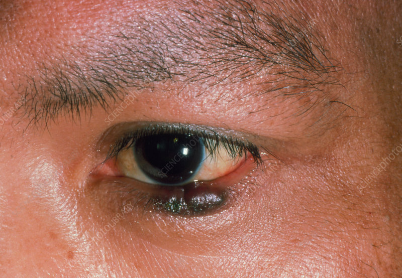 Kaposi's sarcoma on lower eyelid of AIDS patient