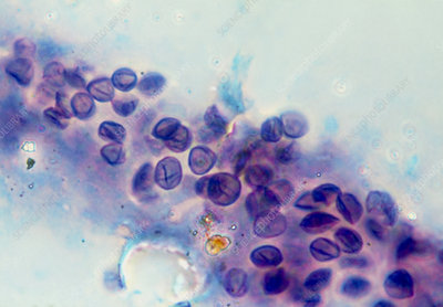 LM of Pneumocystis carinii cysts from AIDS lung
