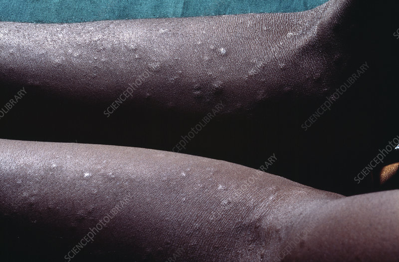 Syphilis rash in an AIDS patient