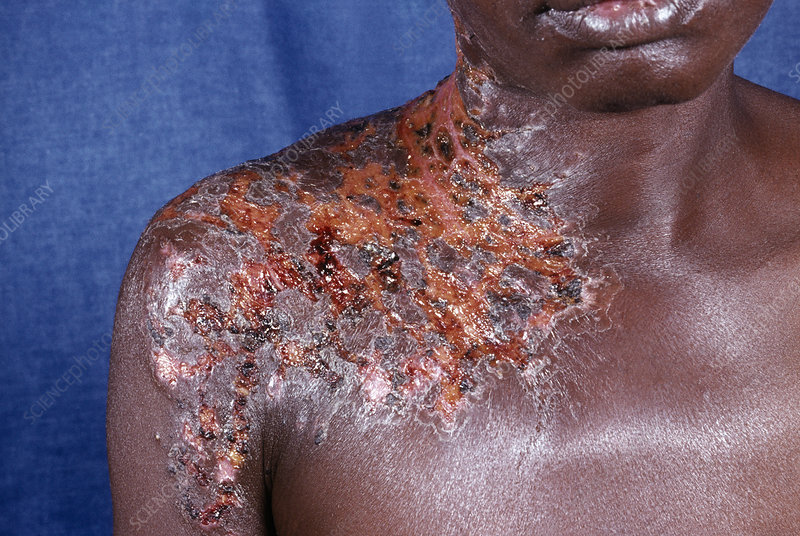 Shingles rash in an AIDS patient