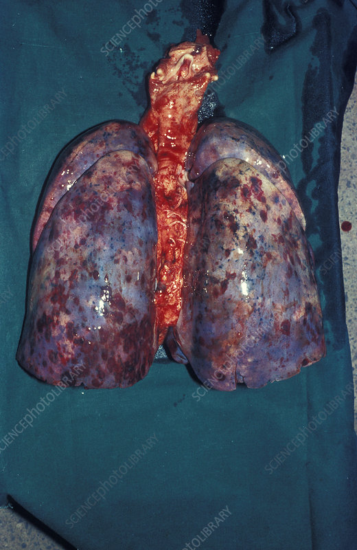 Kaposi's sarcoma of the lungs