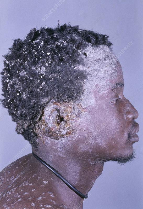 AIDS man with psoriasis