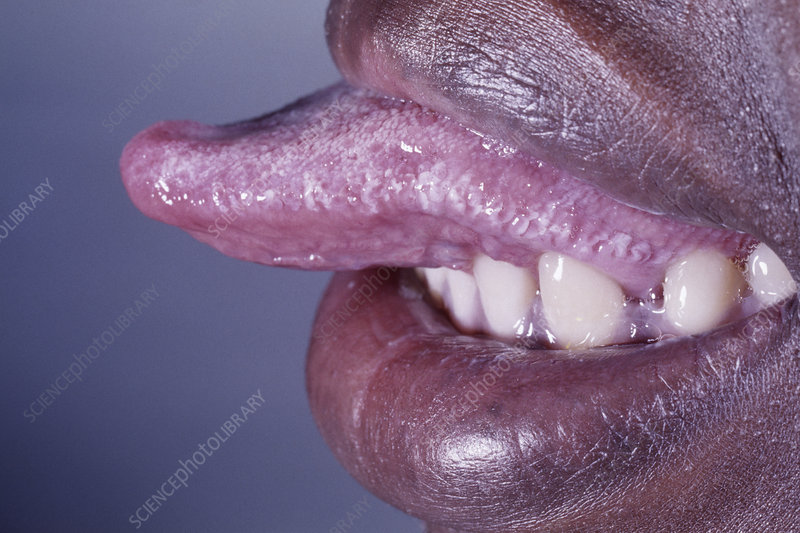 AIDS woman with tongue plaques