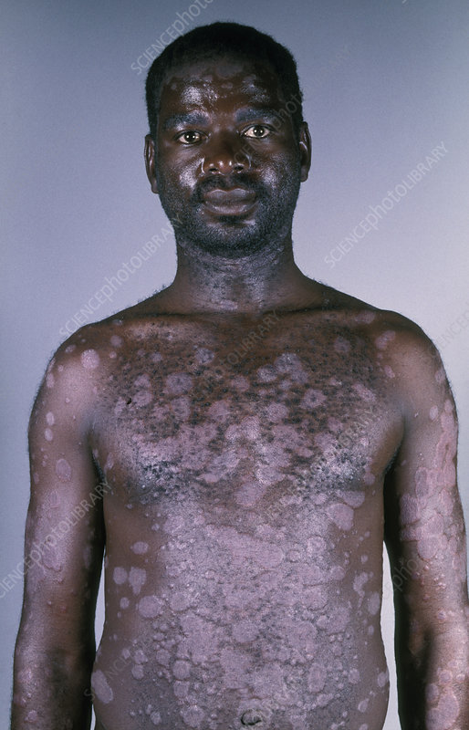 Psoriasis in AIDS patient