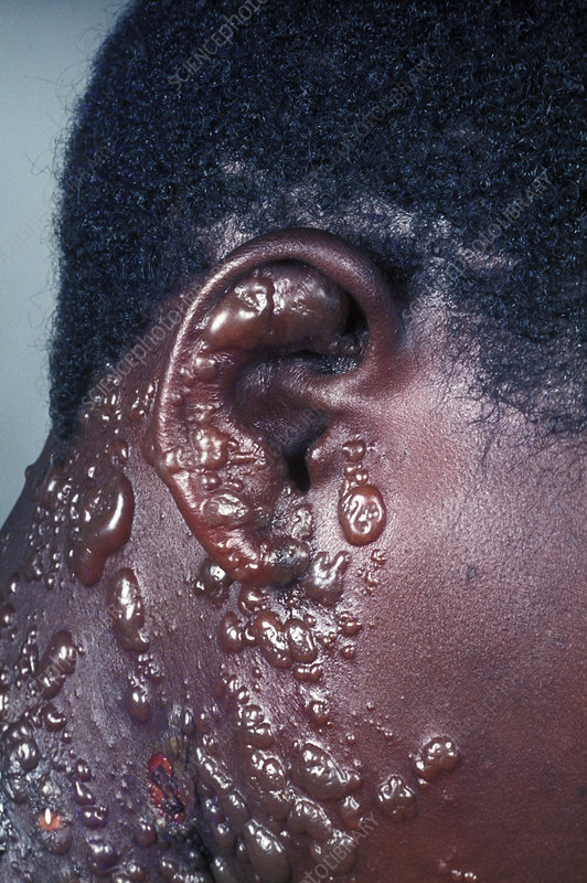 Shingles Rash In An Hiv Patient Stock Image M112 0364