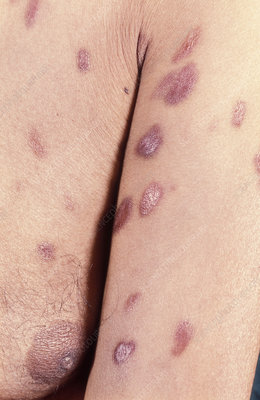 Skin plaques