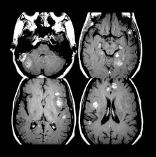 Cerebral Lesions in AIDS Patient