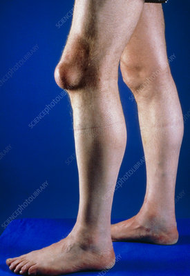 Pre-patellar bursa: swelling on knee