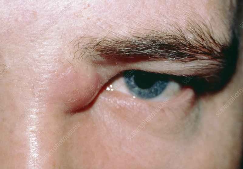 A boil near the inner canthus of left eye