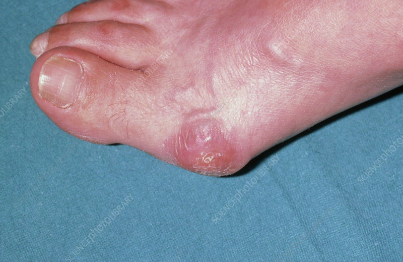 Bunion on woman's foot